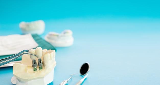 インプランモデルの歯のサポートは、ブリッジインプランとクラウンを修正します。 Premium写真