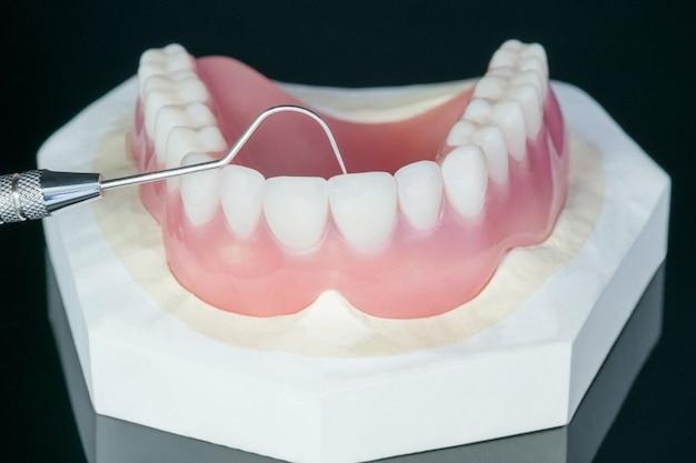 クローズアップ、総義歯または黒の総義歯。 Premium写真
