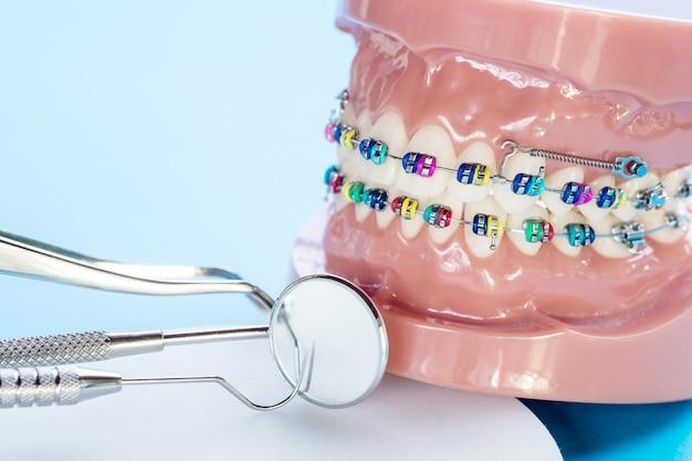歯科医のツールと歯列矯正モデルをクローズアップ-さまざまな歯列矯正ブラケットまたはブレースのデモンストレーション歯モデル Premium写真