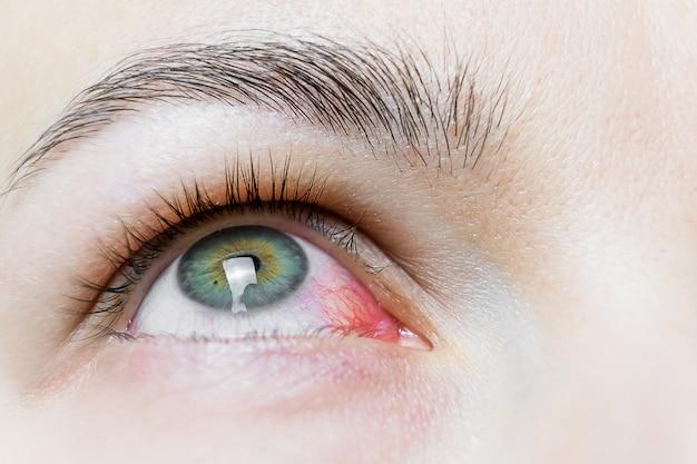 Закройте вверх налитого кровью красного глаза. вирусный блефарит, конъюнктивит, аденовирусы. раздраженный или зараженный глаз. Premium Фотографии