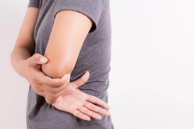 蚊の刺青の女の子の腕の肌、虫刺され Premium写真