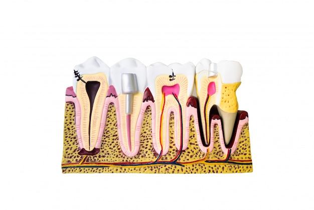 患者教育のための歯科模型 Premium写真