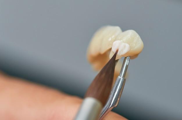 歯科技師の歯科インプラントに彼の研究室でセラミックを置くの拡大写真。 Premium写真