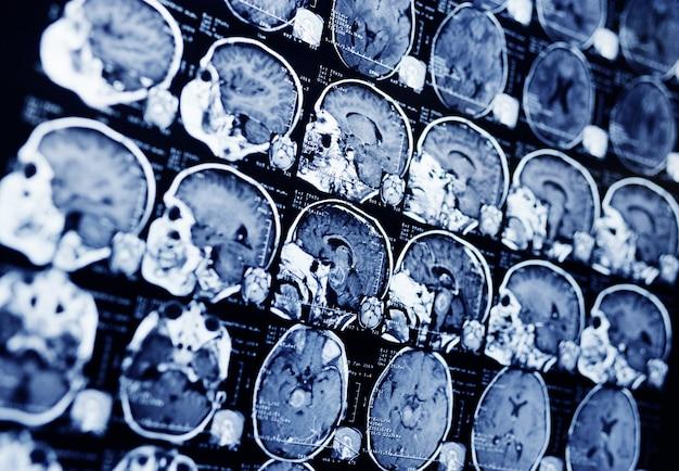 Мрт пациента с опухолью в стволе мозга. нейрохирургия, рак, хирургия. Premium Фотографии