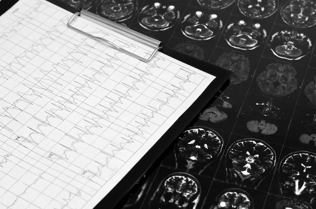 心電図グラフ、心臓解析。黒クリップボード、 Premium写真