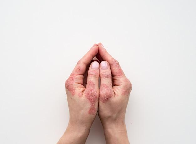 乾癬の皮膚。発疹のクローズアップと患者の皮膚の拡大縮小 Premium写真