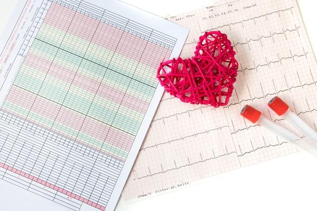 心臓と心電図の記録 Premium写真