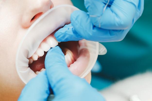 開創器で女性の口のクローズアップ。医者は歯をフロス Premium写真