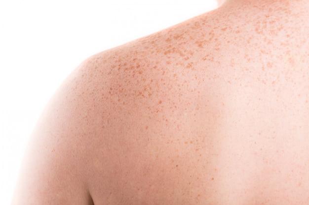 そばかすのクローズアップと背中の皮膚 Premium写真