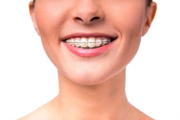 歯にブレースを持つ美しい女性の肖像画。 Premium写真