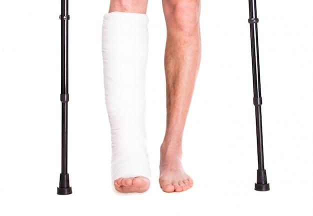 Крупный план пациента со сломанной ногой в гипсе и повязке. Premium Фотографии