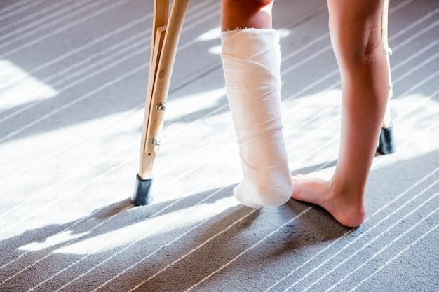 Девушка со сломанной ногой, гипсовая повязка. шина для лечения травм от переломов костей. растяжение связок голеностопного сустава после прыжка на батуте Premium Фотографии