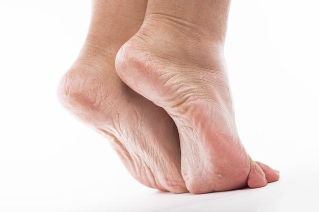 女性の足のかかとの乾燥肌 Premium写真