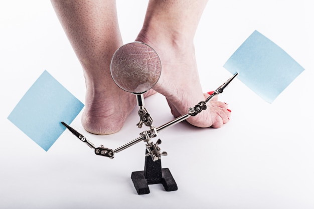 Обезвоженная кожа на пятках женских ног Premium Фотографии
