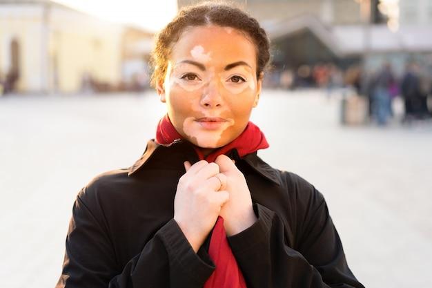 暖かい春の街に白斑立ってアフリカの民族性の美しい少女服を着て黒いコート Premium写真