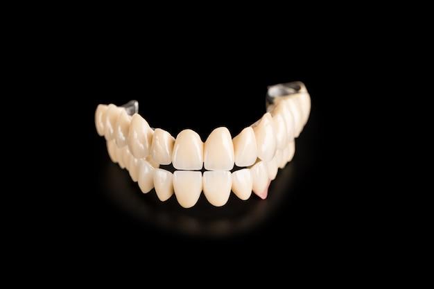 黒に分離された義歯 Premium写真