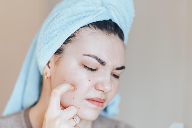 彼女の頭の上にタオルでにきびを絞るの頭の上のタオルでかわいい女の子。 Premium写真