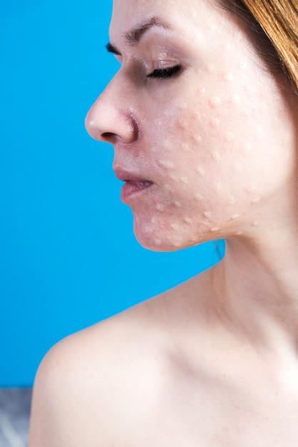 本物の皮膚の生体活性化。 Premium写真