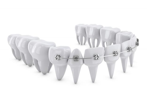 歯科用ブラケット Premium写真