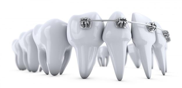 白の歯にブラケットのイラスト Premium写真