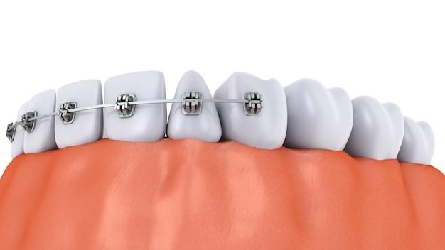 Зубы с брекетами и зубными имплантатами Premium Фотографии