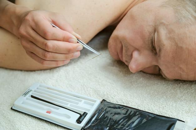 女性の手は、ピンセットで鍼を持っています。 Premium写真