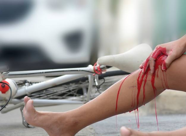 Accident from a bicycle collided with a car Premium Photo
