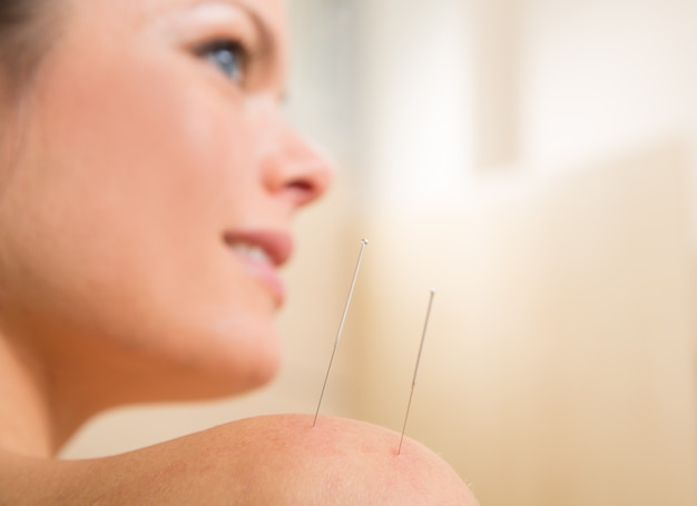 Acupuncture needle pricking on woman shoulder Premium Photo