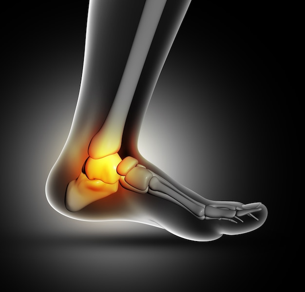 Ankle pain Free Photo