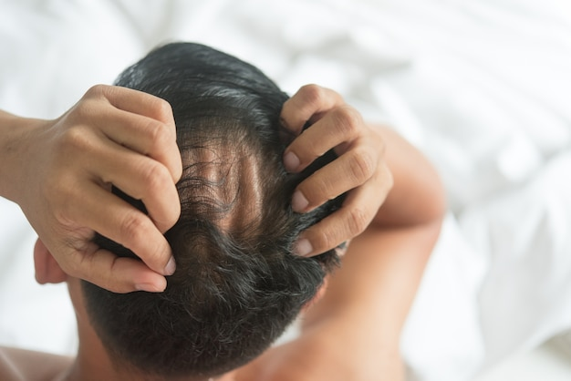 Things You Need To Focus On When Selecting Hair Loss Treatment