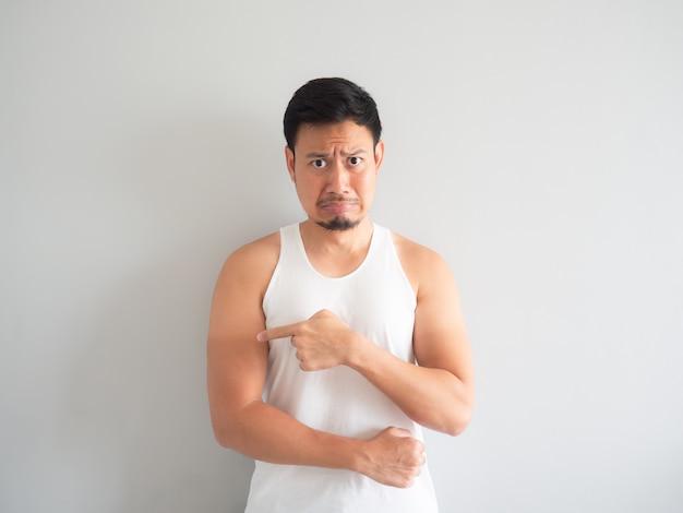 Asian man get sunburn on the arm. Premium Photo