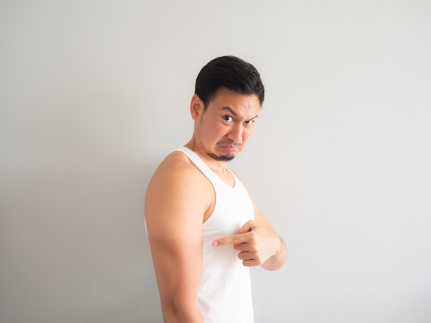 Asian man get sunburn on the arm. Premium Photo