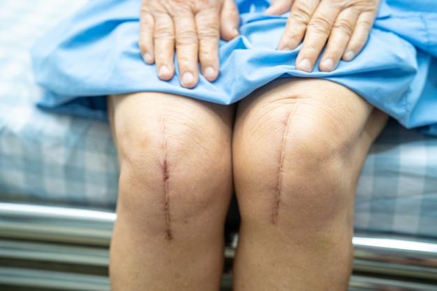 Азиатская старшая женщина терпеливейшая показывает ее шрамы хирургическая полная замена коленного сустава. Premium Фотографии
