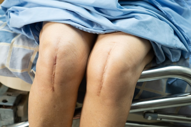Asian senior woman patient show her scars surgical total knee joint replacement. Premium Photo