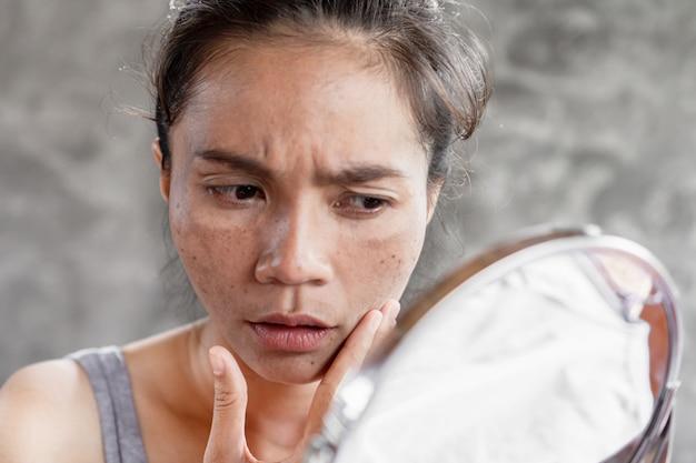 Asian woman having skin dark spot, freckle from uv light Premium Photo