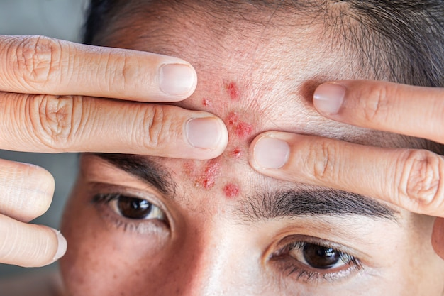 Asian woman squeezing pimples on her forehead Premium Photo