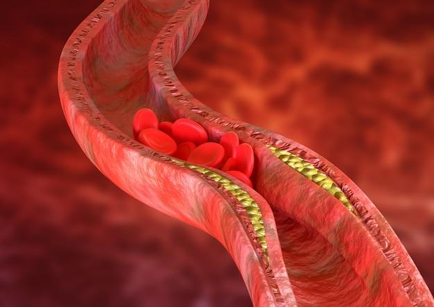 アテローム性動脈硬化症は動脈壁にコレステロール斑が蓄積することです Premium写真