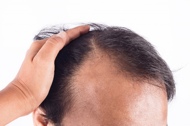 Premium Photo | Bald head of young man o white background