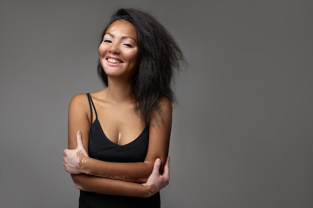 Beautiful african girl in studio with skin problems vitiligo Premium Photo