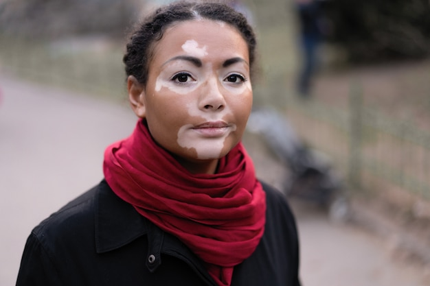 A beautiful young girl of african ethnicity with vitiligo standing on the warm spring city street dressed black coat Premium Photo