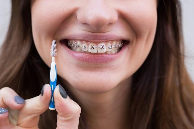 Красивая молодая девушка с металлическими скобами для зубов с белыми зубами и щеткой Premium Фотографии