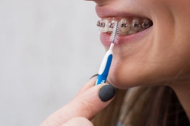 白い歯とブラシで歯のための金属ブレースを持つ美しい少女 Premium写真