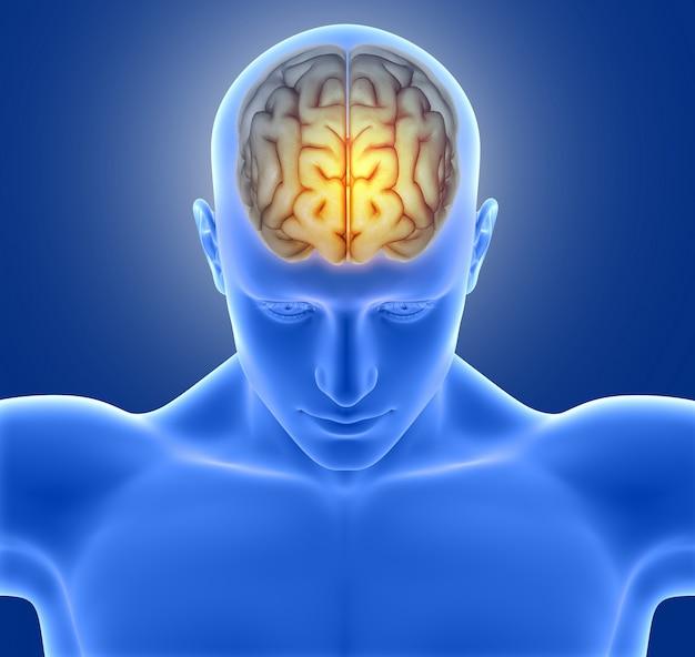 Blue man with headache Free Photo