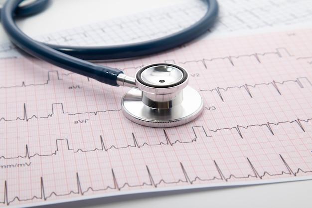 Синий стетоскоп на бумаге диаграммы электрокардиограммы (экг). изолят сканирования диаграммы сердца экг на белом. медицинское страхование и медицинское образование Premium Фотографии