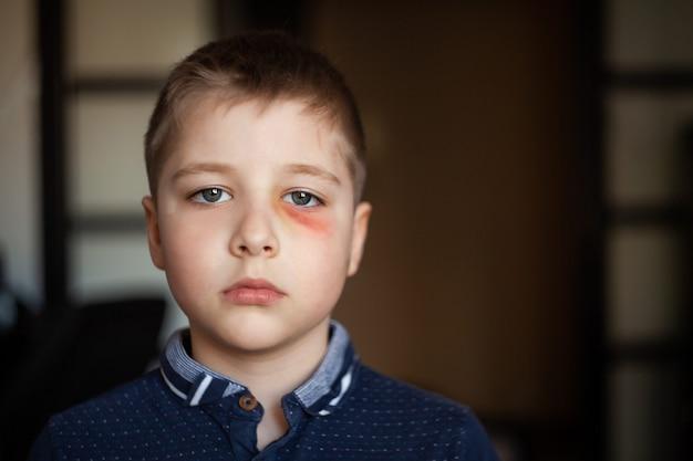 A boy with a black eye Premium Photo