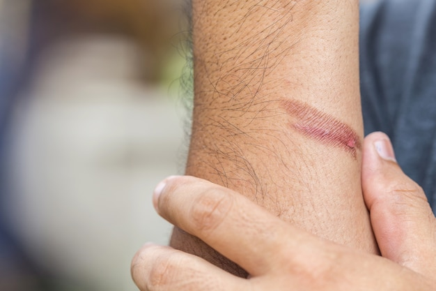 Burning skin on arm, injury from fire Premium Photo
