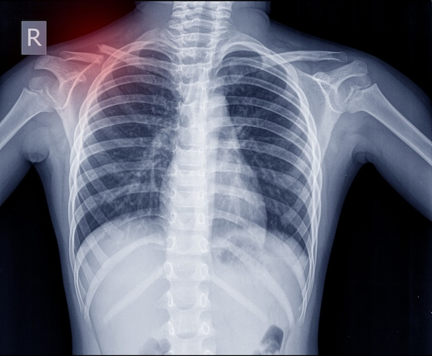Chest x-ray fracture right clavicle. Premium Photo