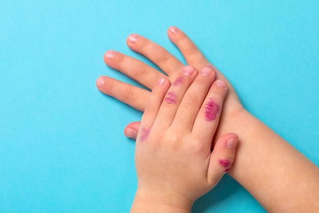 Children hand with dermatitis. eczema on hand. isolated on the blue background Premium Photo