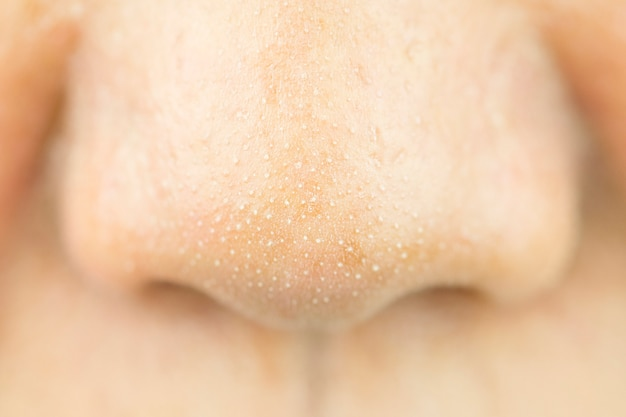 Close up acne small pimple on nose. concept of beauty and health. Premium Photo