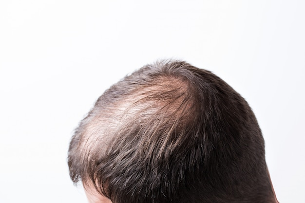 Close-up balding head of a young man on a white isolated wall Premium Photo